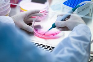 When it comes to using a LIMS, cancer labs have many of the same needs as other labs. But they also have very specific workflows which must be supported, and these can be complex.